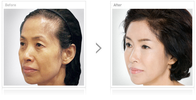 Affordable Hair transplant