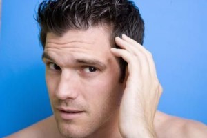How To Fix A Receding Hairline Healthy New Hair